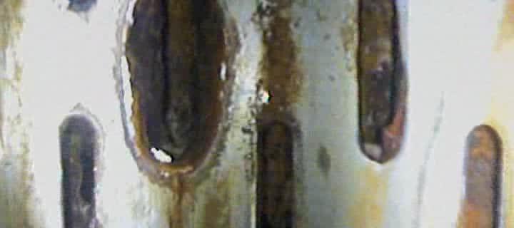 Un traitement par onde de chocs Hydropuls®